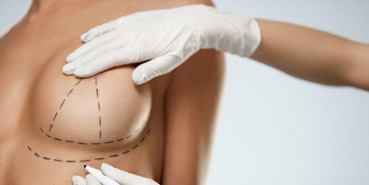 Фокус на грудь: лучшие специалисты Алматы по маммопластике