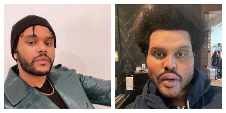 The Weeknd напугал фанатов неудачной пластикой лица