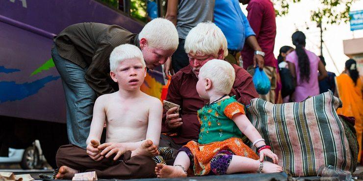 Люди-альбиносы стали подвергаться убийствам из-за пандемии COVID-19